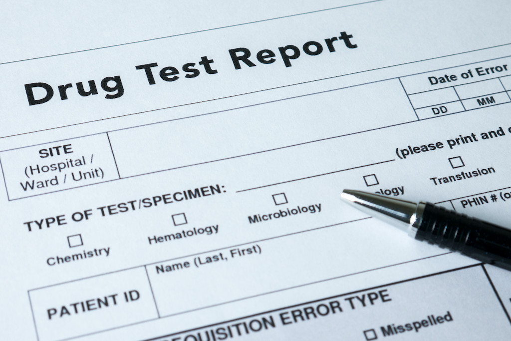 Drug test report